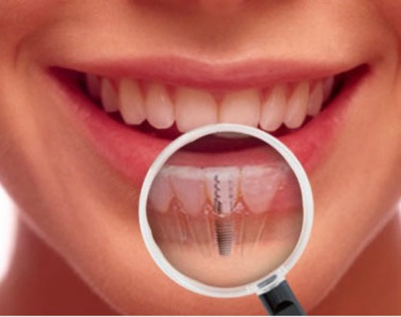best implant dentist ahmedabad india
