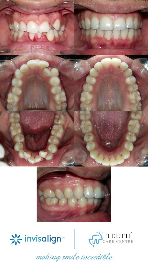 invisalign ahmedabad dr nirav patel provider clear aligner gujarat surat, vadodara rajkot flash clear correct invisible braces orthodontist kline