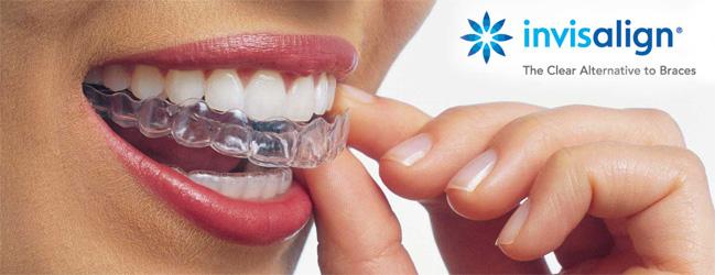 invisalign ahmedabad dr nirav patel provider india teeth care centre pankti patel clear aligner gujarat top no1