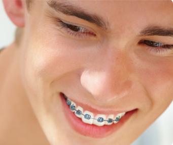 orthodontist ahmedabad braces treatment