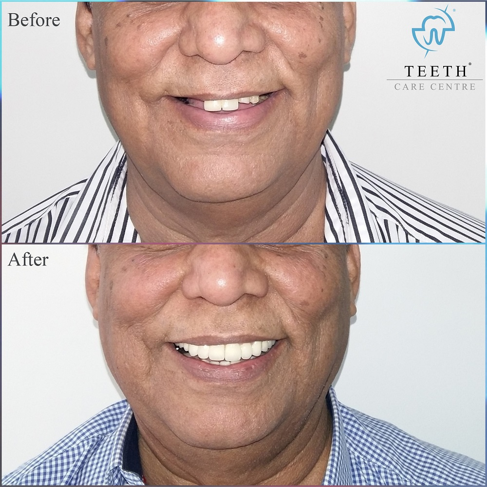 dental implant india ahmedabad full mouth implant fixed teeth denture nobel biocare guided implant surgery