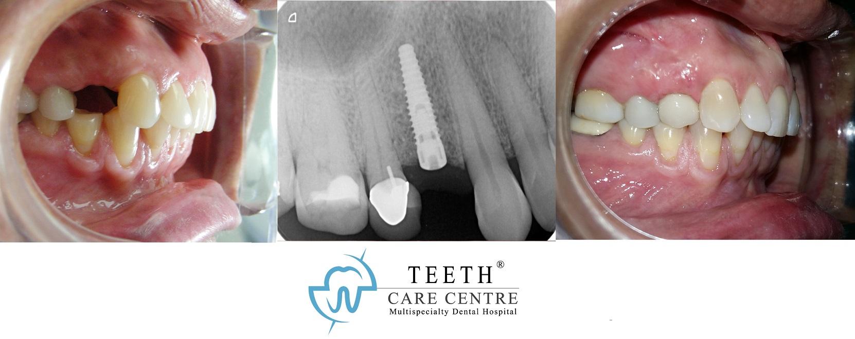 dental implant ahmedabad dentist surgeon nobel biocare