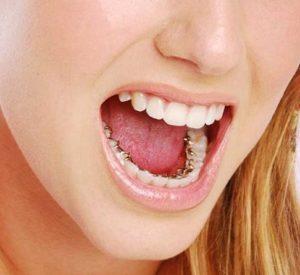 incognito-lingual-braces-ahmedabad india nirav patel teeth care centre dental clinic orthodontist