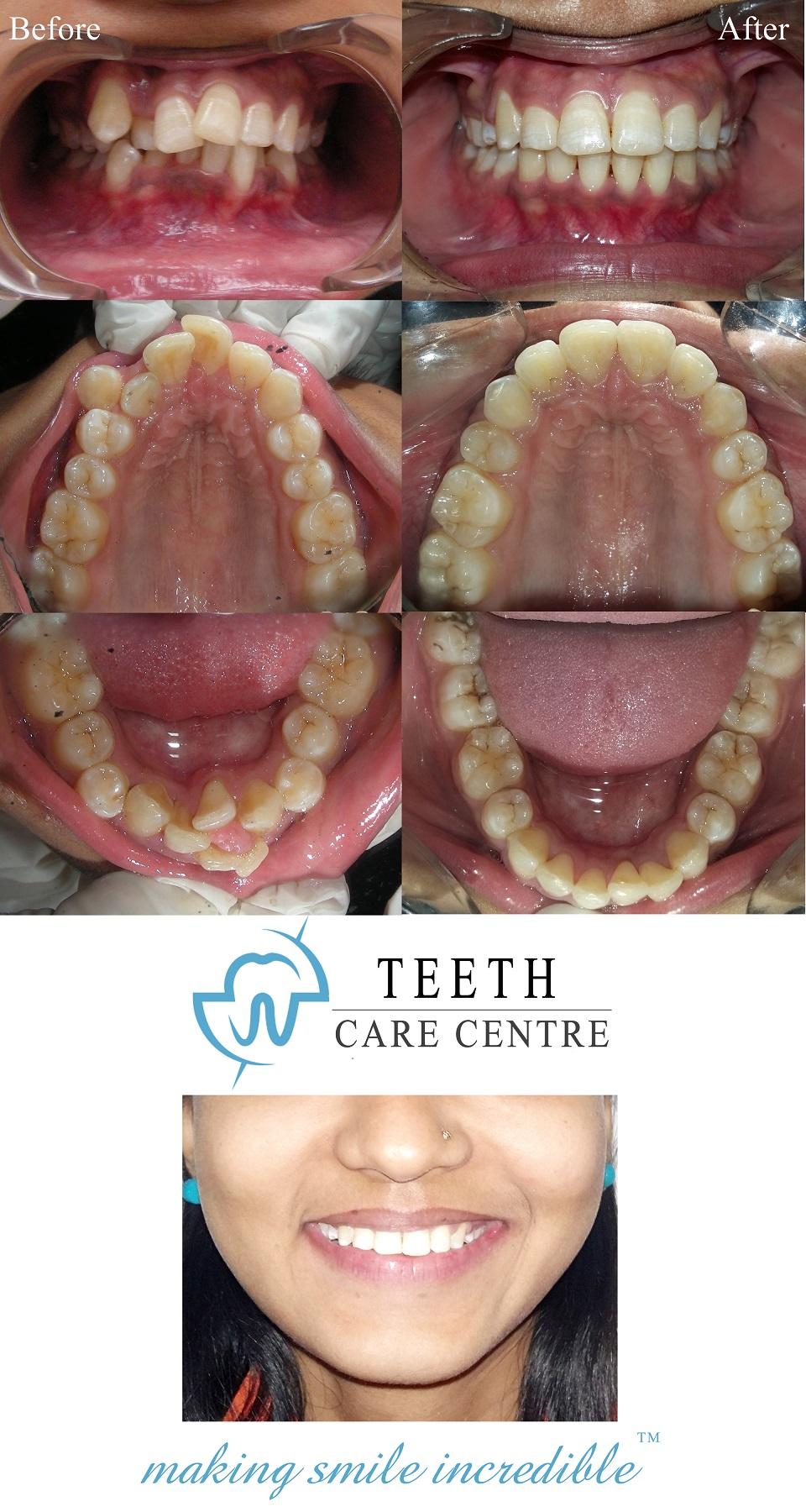 no 1 orthodontist ahmedabad nirav patel teeth care centre pankti patel aligner treatment invisalign braces specialist dental clinic dentist review testimonial treatment (8)
