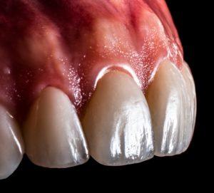 porcelain veneer ahmedabad cosmetic dentist pankti patel nirav patel celebrity dentist dental make over smile improvement 11 (2)