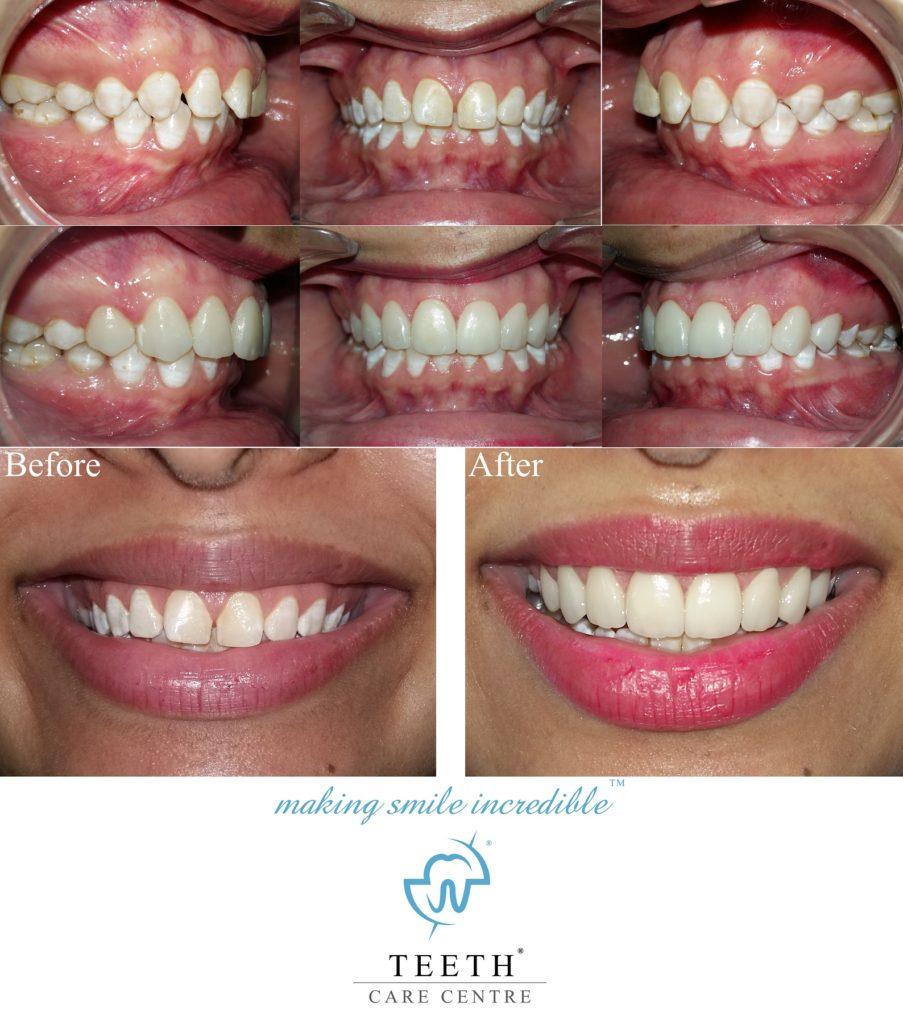 porcelain veneer ahmedabad cosmetic dentist pankti patel nirav patel celebrity dentist dental make over smile improvement 15 (2)