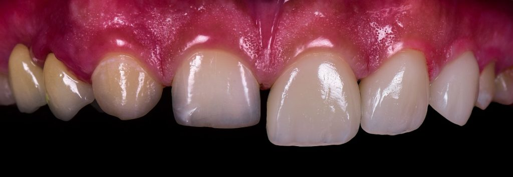 porcelain veneer ahmedabad cosmetic dentist pankti patel nirav patel celebrity dentist dental make over smile improvement 16 (2)