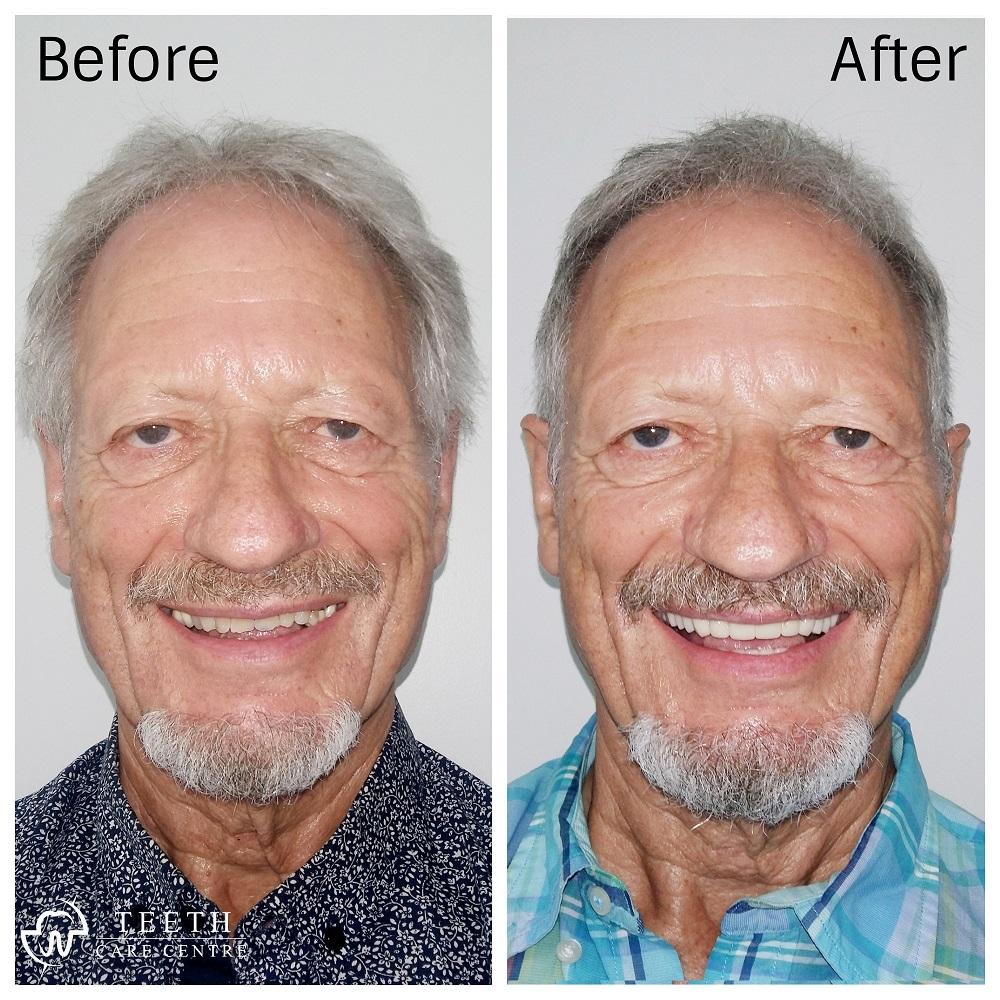 Full Mouth Rehab Dental Implant teeth dentist dental clinic india pankti patel teeth care centre ahmedabad india nirav patel orthodontist