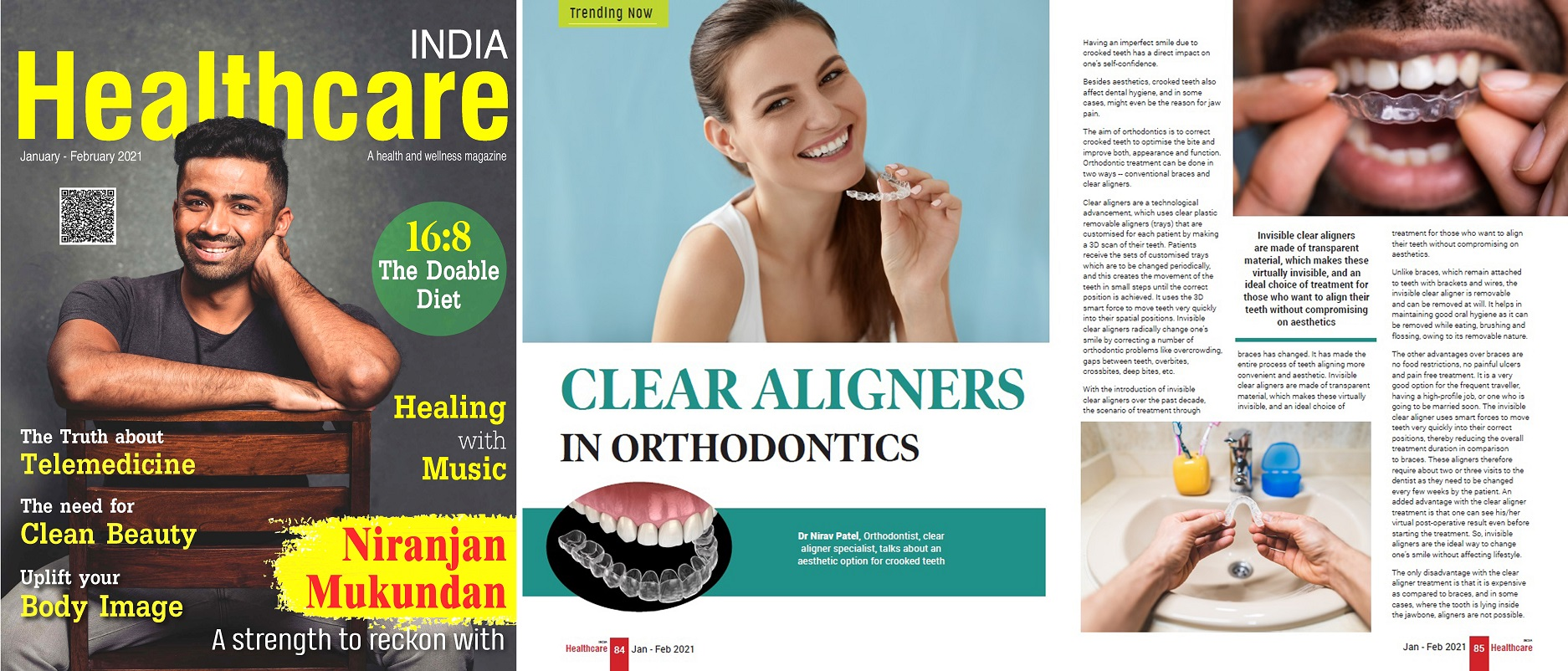 invisalign best orthodontist clear braces aligners invisible ahmedabad satellite